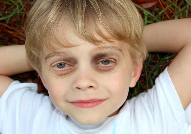 Steve Buscemi Bequeaths Eyes to Little Blind Kid